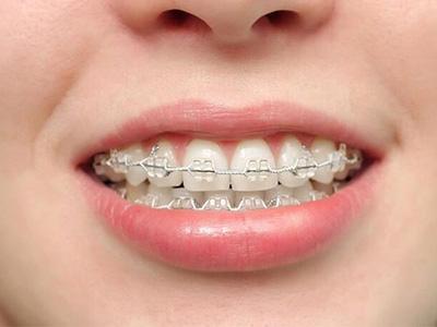 Orthodontics service